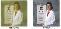 Effects of Cataract Surgery - Before and After